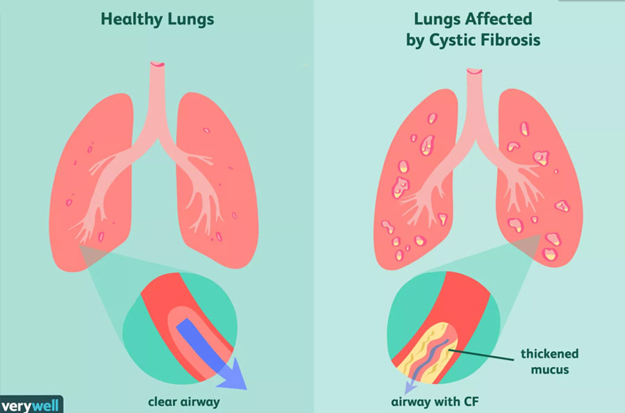 Cannabis Cystic Fibrosis