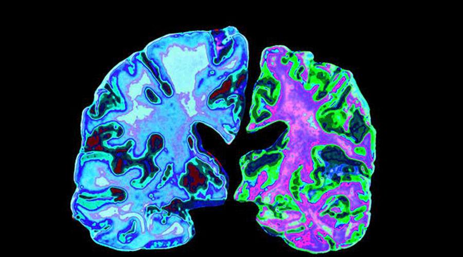 marijuana and alzheimers